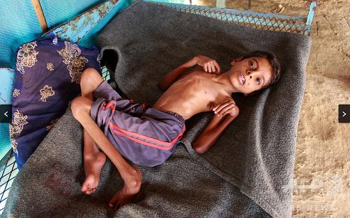 20200713イエメン飢餓
