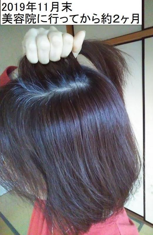 白髪の状態2019年11月末 美容院から2ヶ月