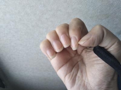 手と縦筋の多い爪の様子 ネイルサロンへ行く準備