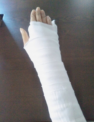リウマチの右手の手術(伸筋腱再建 尺骨頭切除)4