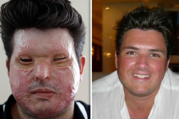 acid-attack-victim-harsher-sentences-UK-634769酸攻撃を受けた英国男性