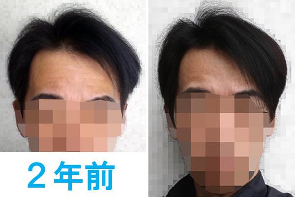 2年前の髪の状態との比較