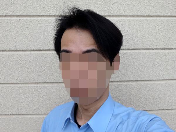 育毛 前髪の長さの写真2020年5月