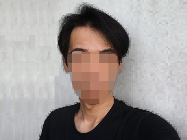 育毛ハゲ改善 正面からの写真2020年5月