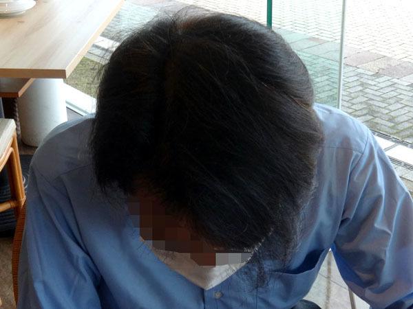 頭頂部の写真