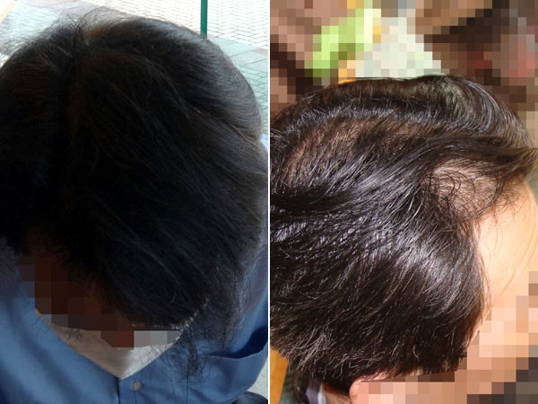 育毛の比較