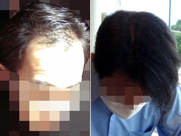 育毛の変化