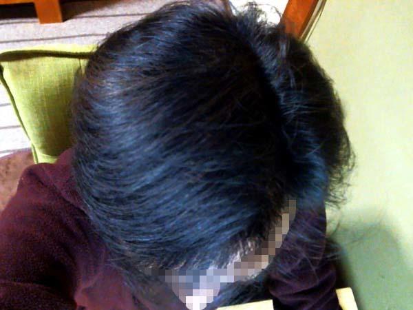 ブログ40代はハゲでした、現在の髪のようす