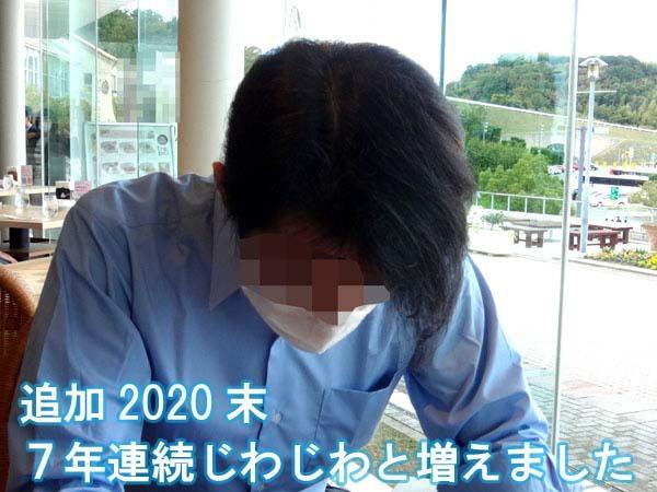 40代はハゲでした、育毛、発毛、7年目の写真