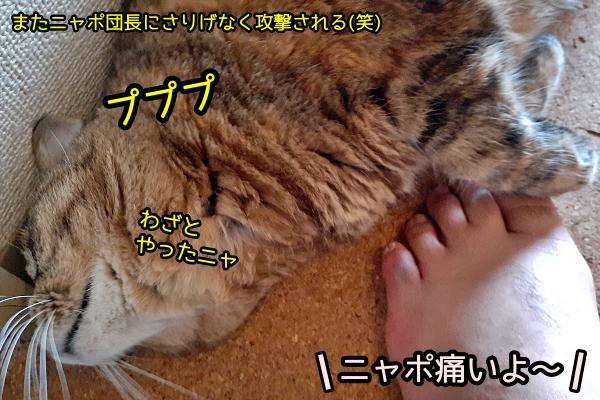 足の小指 内出血