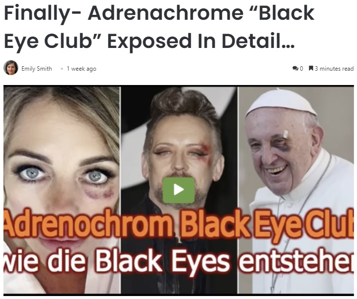 Black Eye Club2