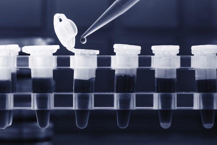 PCR検査は、頼んだら誰でもできるのでしょうか?