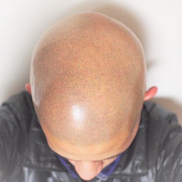 600剃髪後 200415
